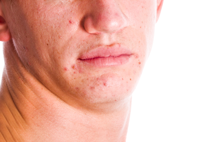 spots-and-blemishes