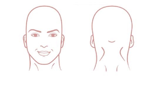 needs-hair-transplant