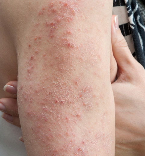 ways-to-keep-eczema-in-check