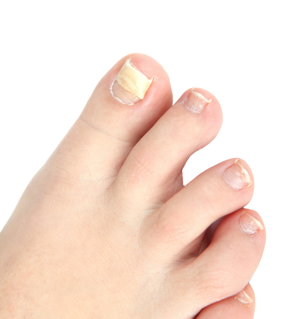 We Generally Consider Nails As A Part Of Our Body That Enhances The Beauty Fingers Though Fingernails And Toenails Are Adorned With Various