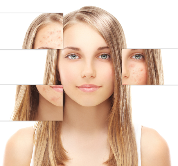 thickening-skin