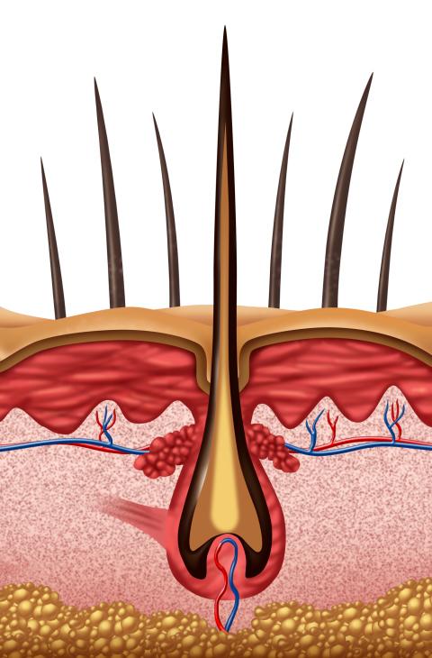 alopecia-in-men