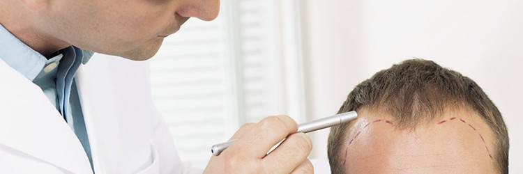 Stem Cell Therapy for Hair Loss (Mesotherapy)