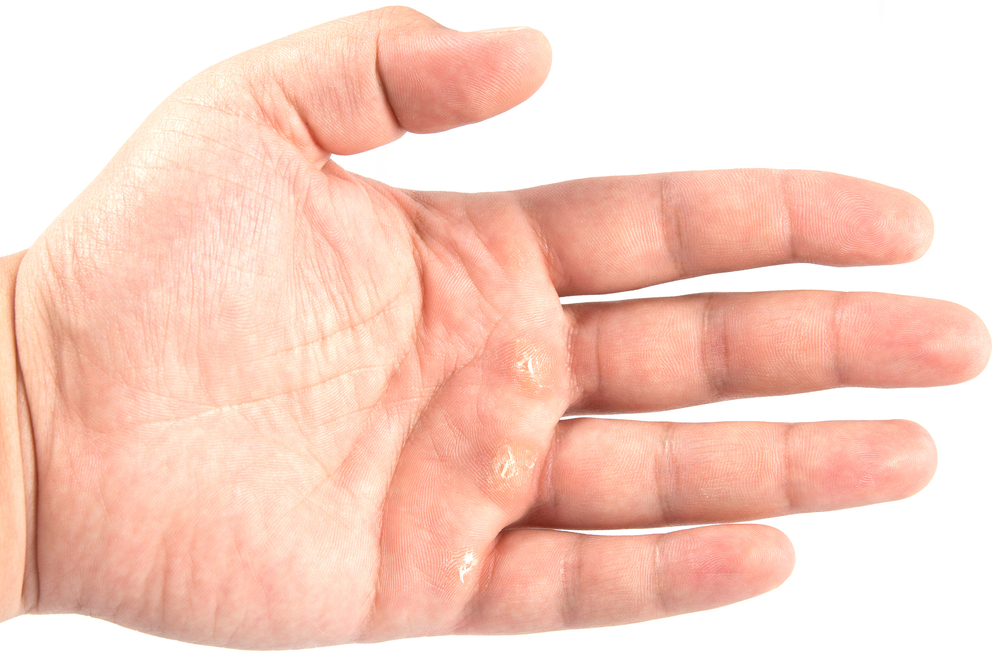 How to deal with calluses on your hands