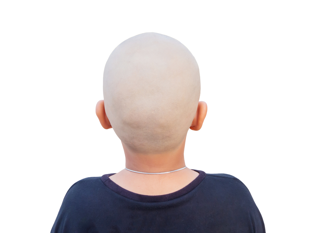 hair-loss-children