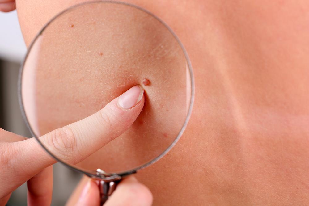 normal-moles