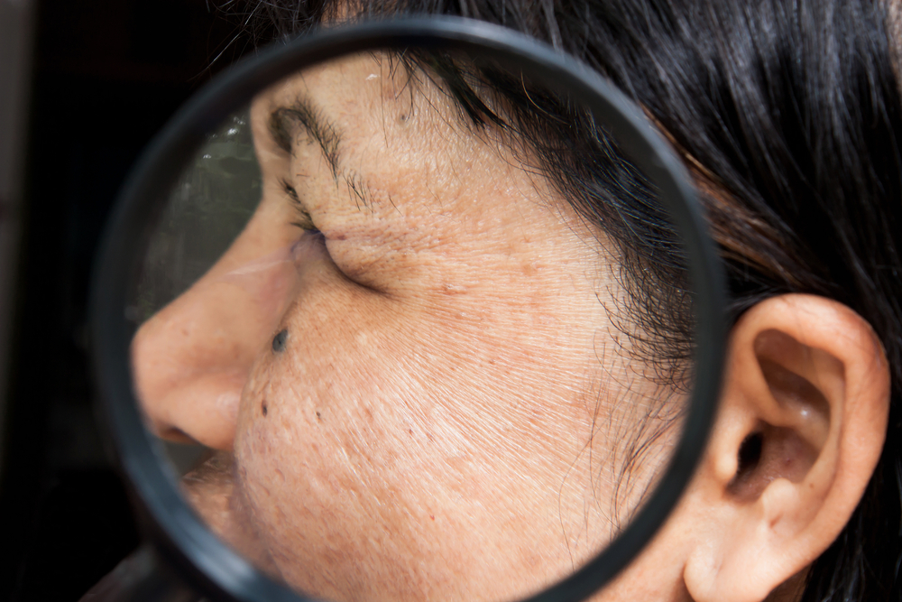 the-effects-menopause-skin-2