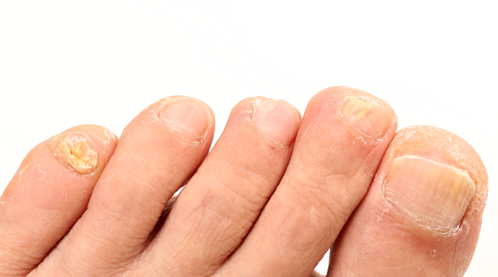 Learn To Cure And Prevent Toenail Fungus During Monsoon Season