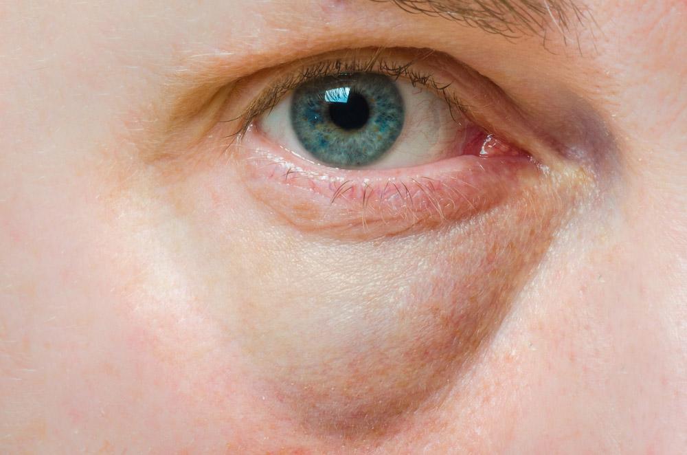 under-eye-dark-circles