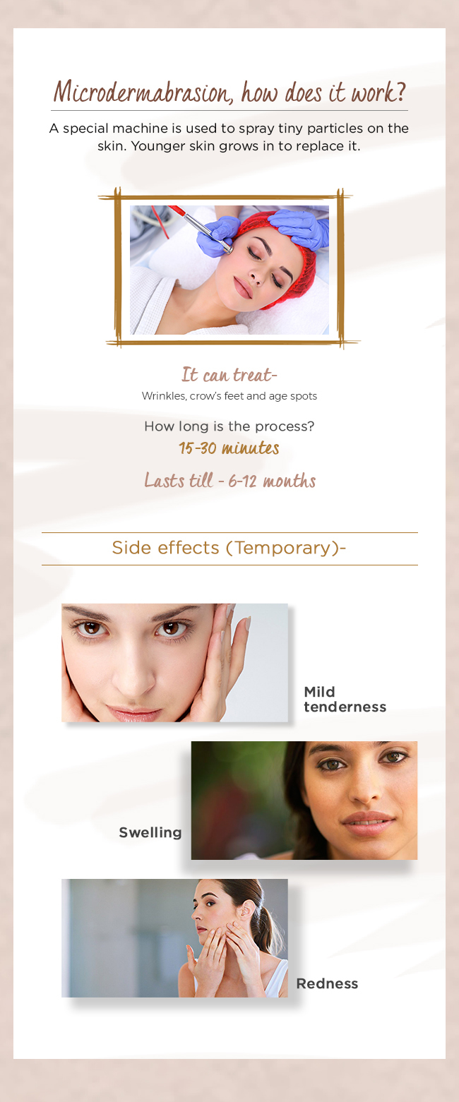 Microdermabrasion__how_does_it_work