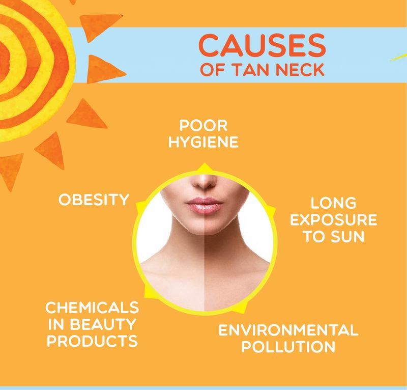causes-tan-neck