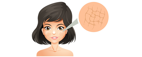 Dry or Itchy skin - signs of premature skin ageing
