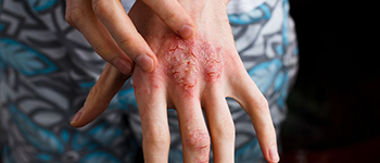 How is Atopic Dermatitis different from other skin diseases?