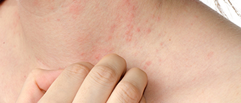 What are the risk factors for Atopic Dermatitis?