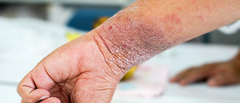 How is Atopic Dermatitis diagnosed?