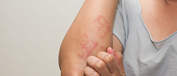 What are the common symptoms of Atopic Dermatitis?