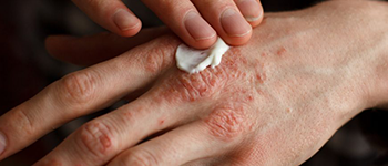 How is Atopic Dermatitis treated?