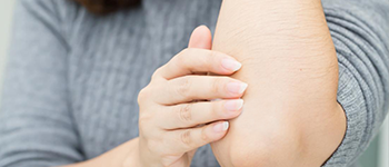 Can Atopic Dermatitis be permanently cured?