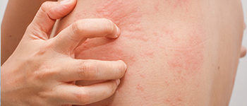 What is Chronic Spontaneous Urticaria or CSU?