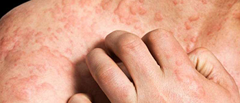 What is the cause of Chronic Spontaneous Urticaria or CSU?