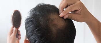 WHAT ARE THE SYMPTOMS OF ANDROGENETIC ALOPECIA?