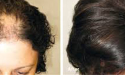 PRP for Hair Loss