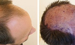 hairtransplant
