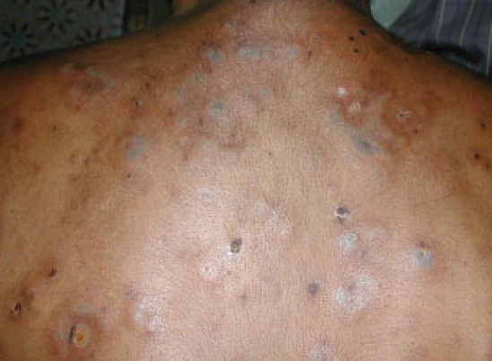 Case: Successful management acne fulminans in a 15 years old boy