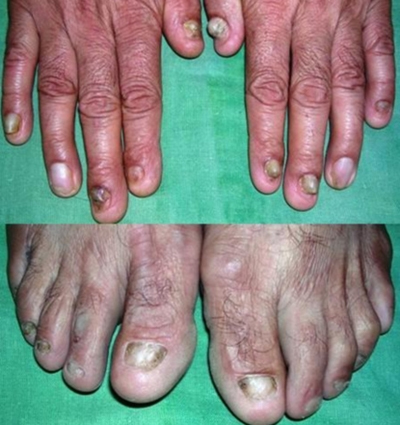 Case: Successful cure of Chronic itching & lesions in a 40 Years old man