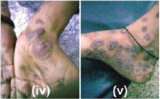 Case: Skin rash in Pregnancy, examination, procedure and outcome