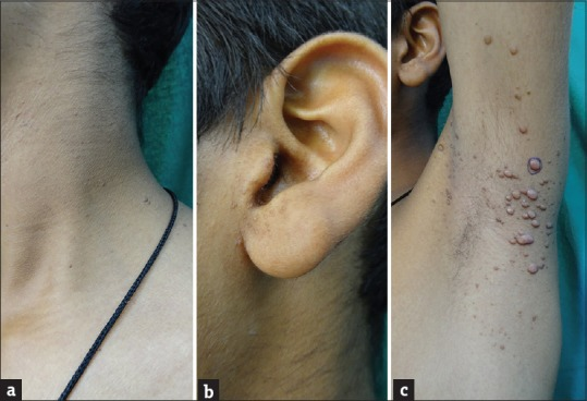 Case of Numerous Asymptomatic Papulo Nodules and Plaques in a Young Male