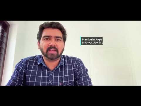 About Common Clinical Problem - Melasma | Video Shared By Dr Manjunath