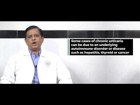 Urticaria Video by Dr Kiran Godse | Prof. of Dermatologists