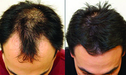 Mens hair weave for baldness hair loss in men pmusecretfo Choice Image