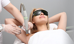 laser hair reduction for ingrown hair