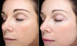 fractional laser resurfacing